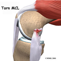 knee-mcl-collateral-1
