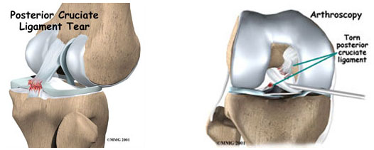 knee-pcl