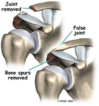 shoulder-acjoint-2