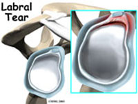 shoulder-labral-fig1