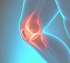 ProOrtho Knee Specialties
