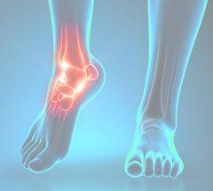 ProOrtho Ankle Specialties